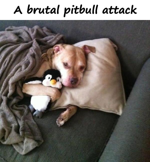 A brutal pitbull attack