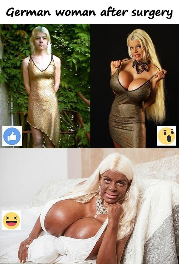 German woman after surgery