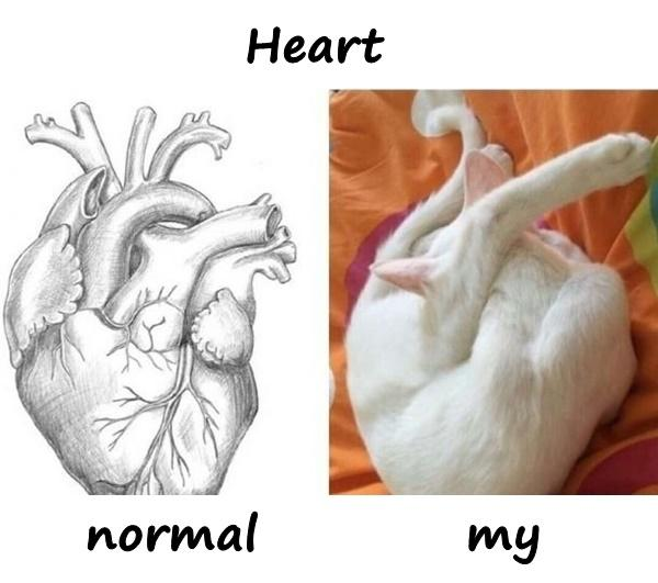 Heart - normal vs. my