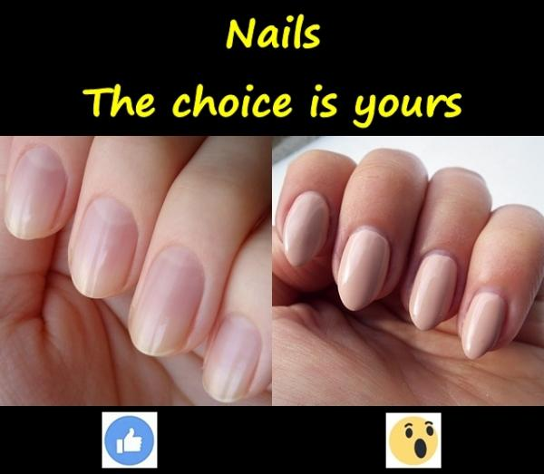 Nails. The choice is yours.