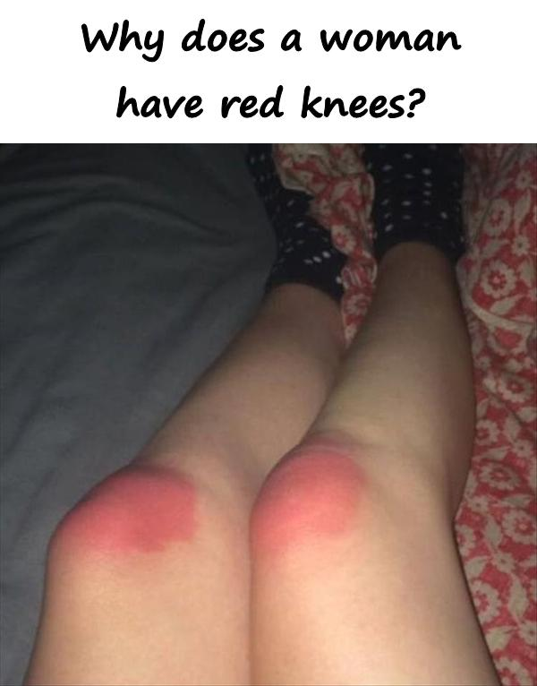 Why does a woman have red knees?