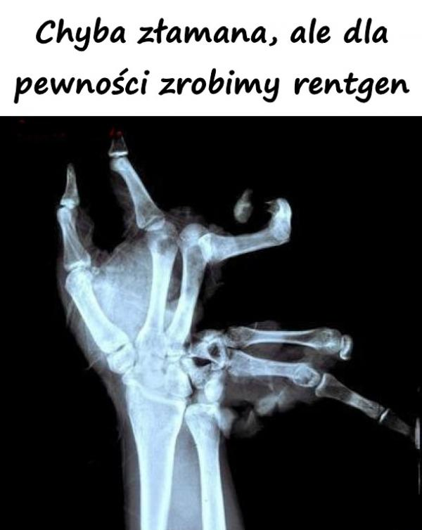 Chyba złamana, ale dla pewności zrobimy rentgen