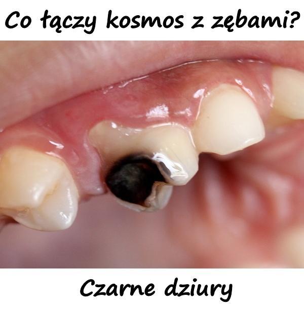 Co łączy kosmos z zębami? Czarne dziury