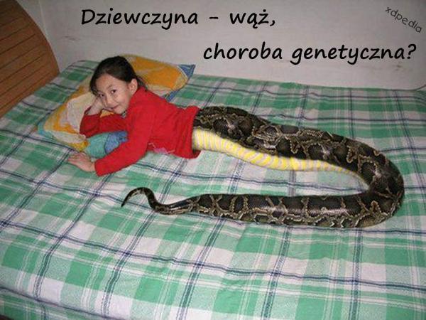 Dziewczyna - wąż, choroba genetyczna?