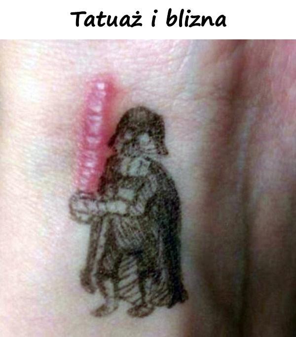 Tatuaż i blizna
